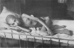 БОЛЬНАЯ ДИСТРОФИЕЙ ЖЕНЩИНА, ЛЕЖАЩАЯ НА КРОВАТИ В БЛОКАДНОМ ЛЕНИНГРАДЕ. 1942 г.